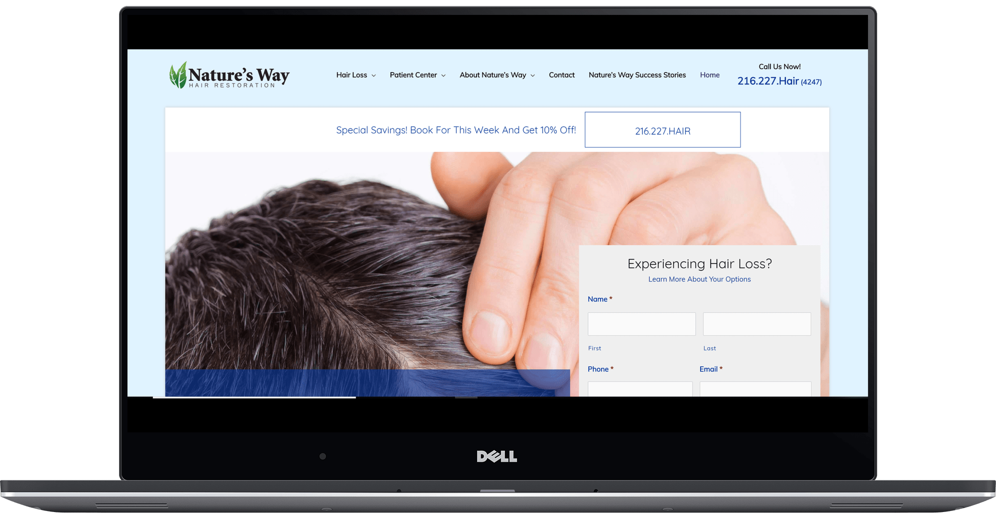 Custom Website Desing | Ohio Hair Loss